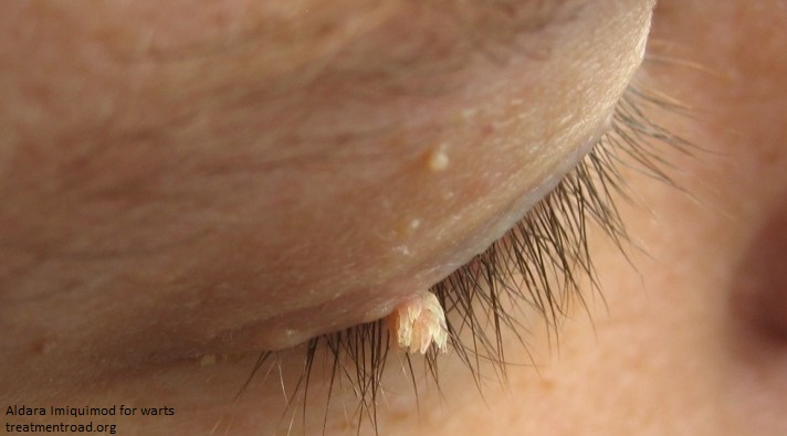 warts on the eyes